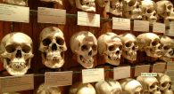 human skull display at Mutter Museum